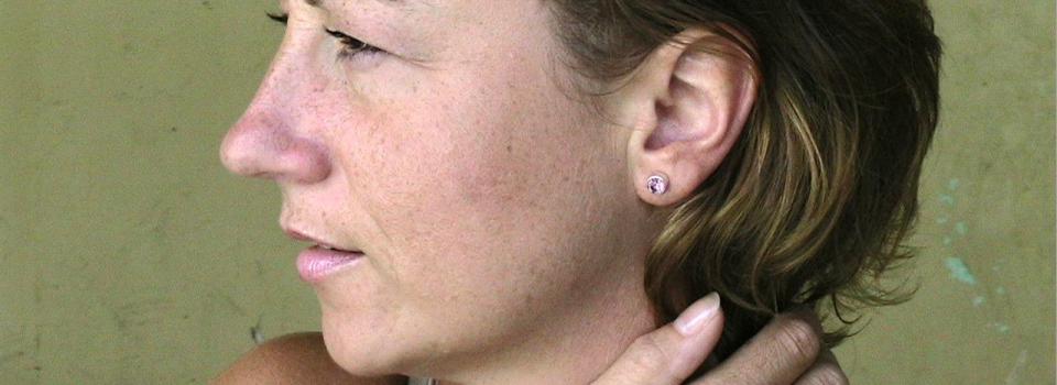 skin-clinic-microdermabrasion